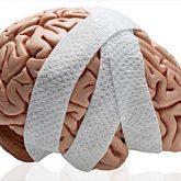 Los Mejores Abogados en Español de Lesiones Cerebrales Para Mayor Compensación en Chicago IL